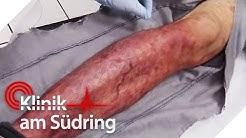 Muss das Bein amputiert werden? Es verfault! | #FreddyFreitag | Klinik am Südring | SAT.1 TV