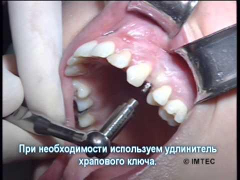 Циркониевая коронка на передний зуб отзывы, цены, плюсы и