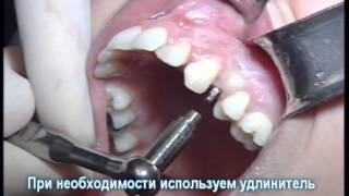 видео Если выпал зуб!