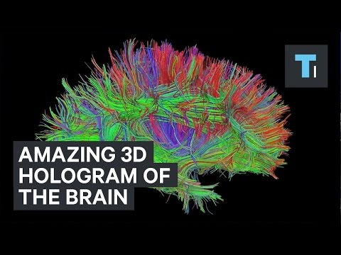 3D hologram of the brain's connections