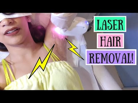 AFFORDABLE Underarm Laser Hair Removal | Diode Laser Hair Removal | Lolly Isabel