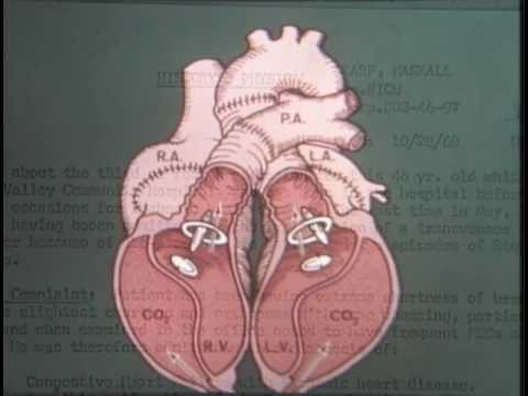 "Artificial Heart Transplantion - ""State of the Heart"" - Documentary"
