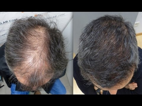4101 Grafts. Hair Transplant by FUE Technique. Diffuse alopecia. Injertocapilar.com. 1344/2013.