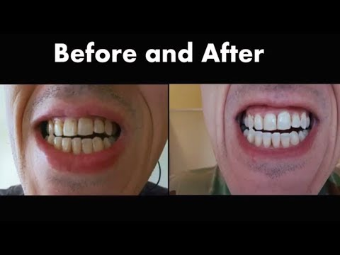Oral B 3d White Whitestrips Review Before And After Youtube