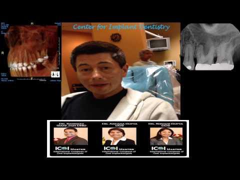 Sinus Infection Fremont – Implant Dentist San Jose – Patient Review