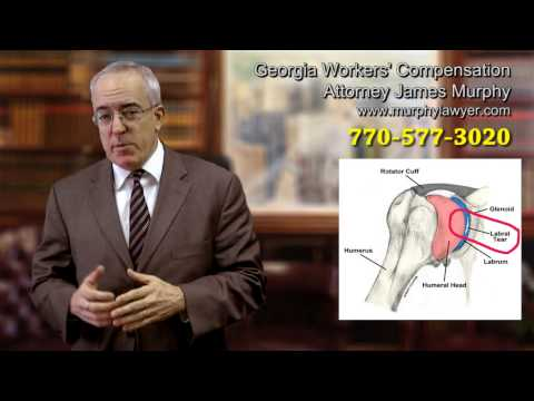 Employee Gets Injured Shoulder (Labrum Tear) Repeated Motion Injury - Georgia Workers Comp Attorney