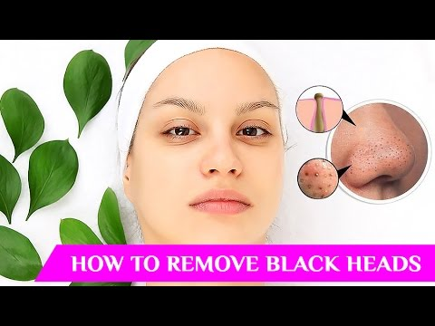 how-to-remove-blackheads,-how-to-remove-whiteheads,-how-to-remove-whiteheads-from-nose,-blackheads