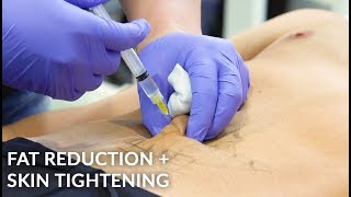 Non-Invasive Fat Reduction | Mesotherapy | Vanquish Radiofrequency | Cellutone Shock Therapy