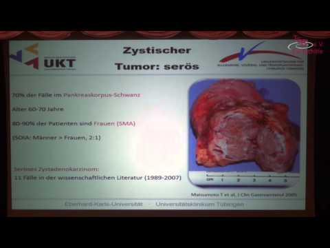 Operative Möglichkeiten bei Bauchspeicheldrüsenkrebs - YouTube