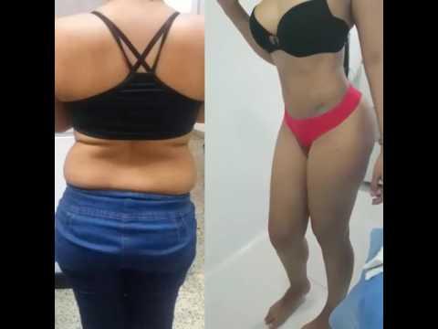 Cirugia plastica Cucuta Colombia - plastic surgery cucuta  doctor luis fernando parra