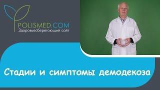 видео Клещ демодекс на лице: фото, симптомы