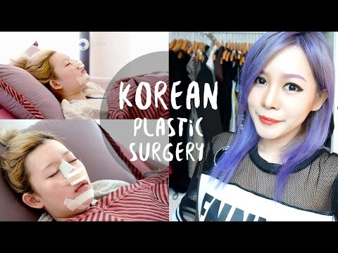 Plastic Surgery FAQ - KPop Plastic Surgery