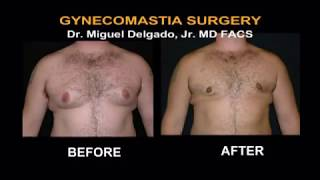 Gynecomastia Before and After Pictures - Sonoma County, California