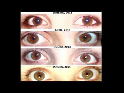 Resultado de imagem para biokinesis before and after