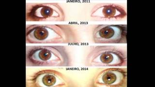 eye changes on raw food diet before and after