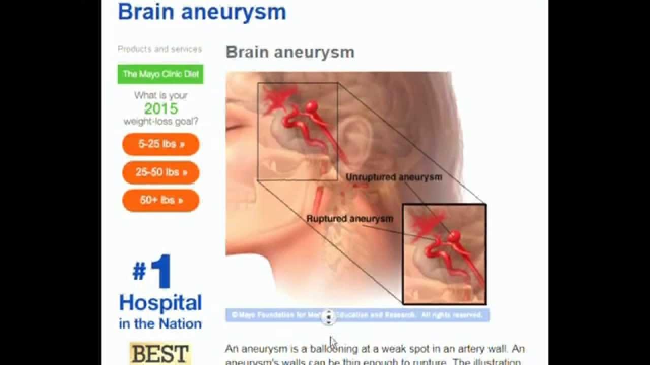 tamala jones (from booty call) on surviving a brain aneurysm - youtube, Cephalic Vein