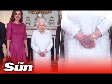The Queen's hand pictured purple sparking concern worldwide