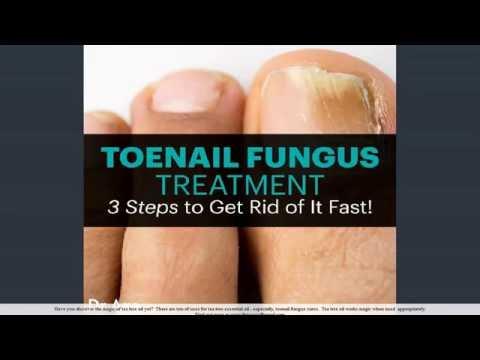 tea tree oil nail fungus