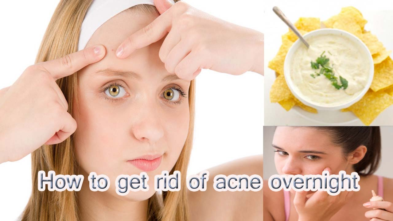 How Can You Get Rid Of Acne Fast