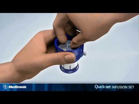 medtronic diabetes katheter frau