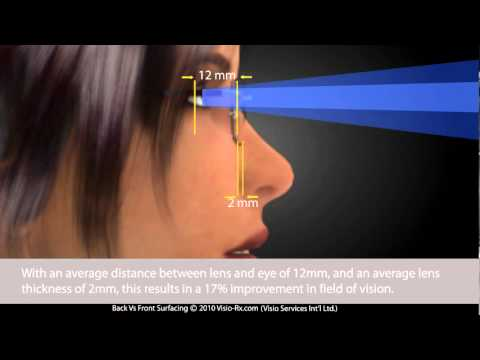 Progressive Lenses: Back Surfacing vs. Front Surfacing. Digital ...