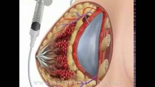 Silikon Ameliyati Videosu İzle