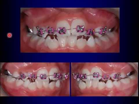 Fixed Orthodontic Appliances in the Mixed Dentition - YouTube
