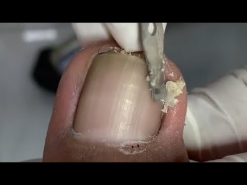 How to cut the sharp nail