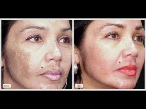 4%-hydroquinone-cream-for-discoloration,-melasma,-skin-lightening-and-pregnancy-mask