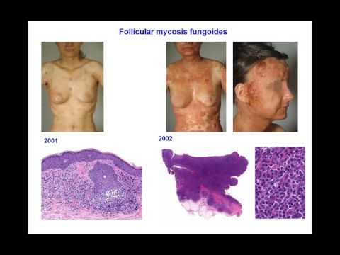 Dr  Werner Kempf Cutaneous T cell Lymphoma1462960964