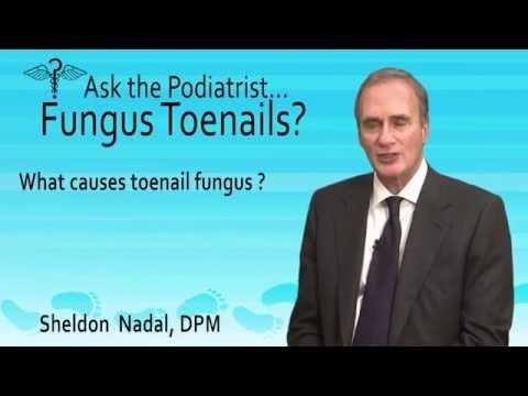 How Did I Get Toenail Fungus? Toronto, ON – Podiatrist Sheldon Nadal, DPM