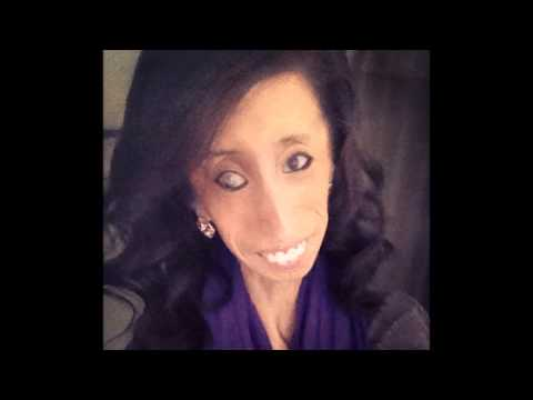 Most Beautiful Girl in the World -- Lizzie Velasquez