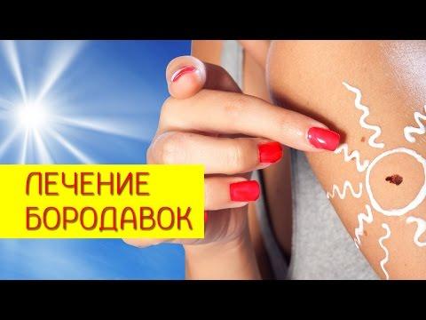 Лечение  бородавок. Аптечные препараты для лечения  бородавок, грибка, лентиго. [Галина Гроссманн]