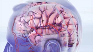 Udar mózgu, część 2: udar niedokrwienny mózgu