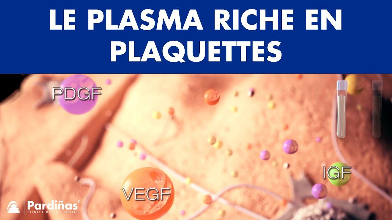 Download PRP - Plasma riche en plaquettes ©