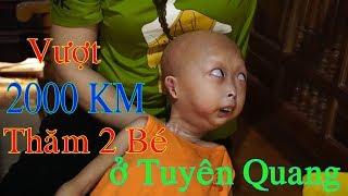 Vượt 2000 KM  Giúp Hai Bé Mắc Bệnh Hiểm Nghèo Tại Tuyên Quang