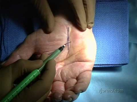 Hand Surgery Limited Incision Open Carpal Tunnel Release Youtube