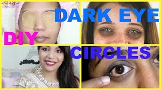 How to Get Rid of Dark Circles Naturally at Home | SuperPrincessjo