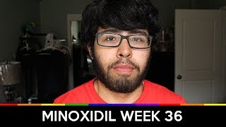 MINOXIDIL WEEK 36 [UNEXPECTED HAIR GROWTH]