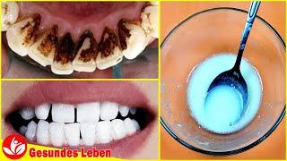 Keine Notwendigkeit,zum Zahnarzt zu gehen: Zahnbelag und Zahnstein entfernen nur mit dieser Mischung