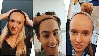 Hairline Check Tiktok