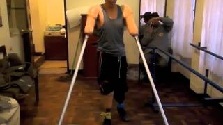 Repeat youtube video CMA Patient - A young amputee who lost all 4 limbs