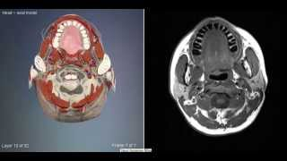 видео компьютерная томография головного мозга