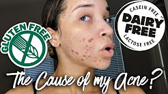 hqdefault - Are There Food Allergies That Cause Acne