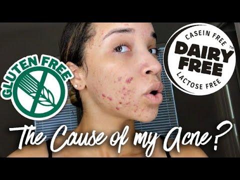 hqdefault - Gluten Allergy Skin Acne