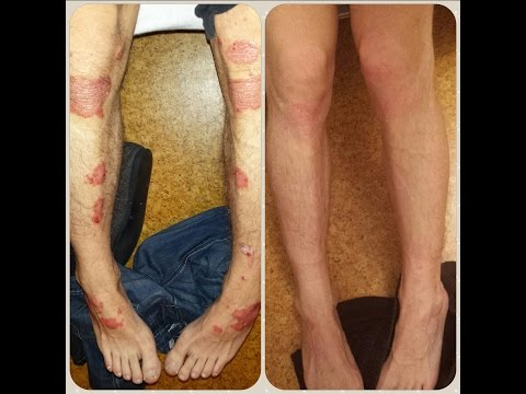 How I cured my psoriasis 100% Naturally in 7 months