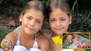 Ces soeurs siamoises ont été abandonnées par leurs parents. Ce qu'elles sont devenues vous choquera!