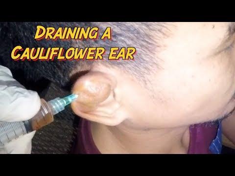 How to Drain A Cauliflower Ear