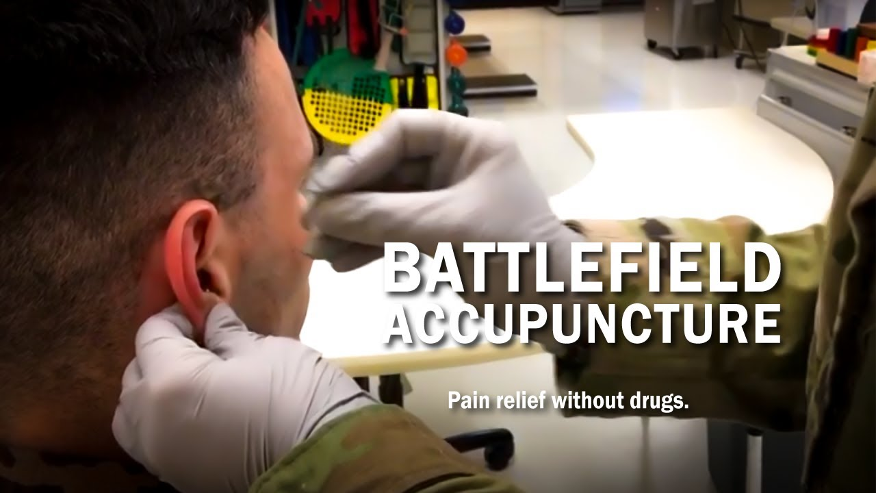 Pain Relief without Drugs: Battlefield Acupuncture