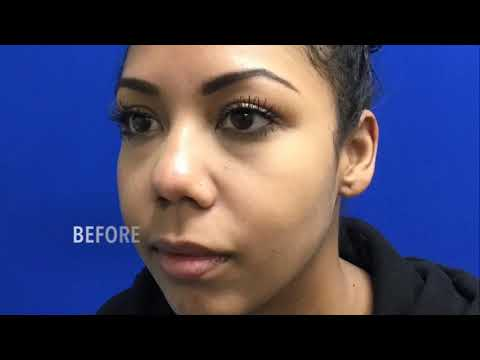 Buccal Fat Removal for Permanent Contouring